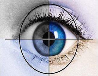 求关于在法国做近视眼手术的经验分享