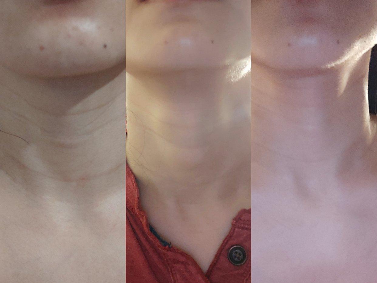 中度颈纹 ‖ 一个月让颈纹变淡