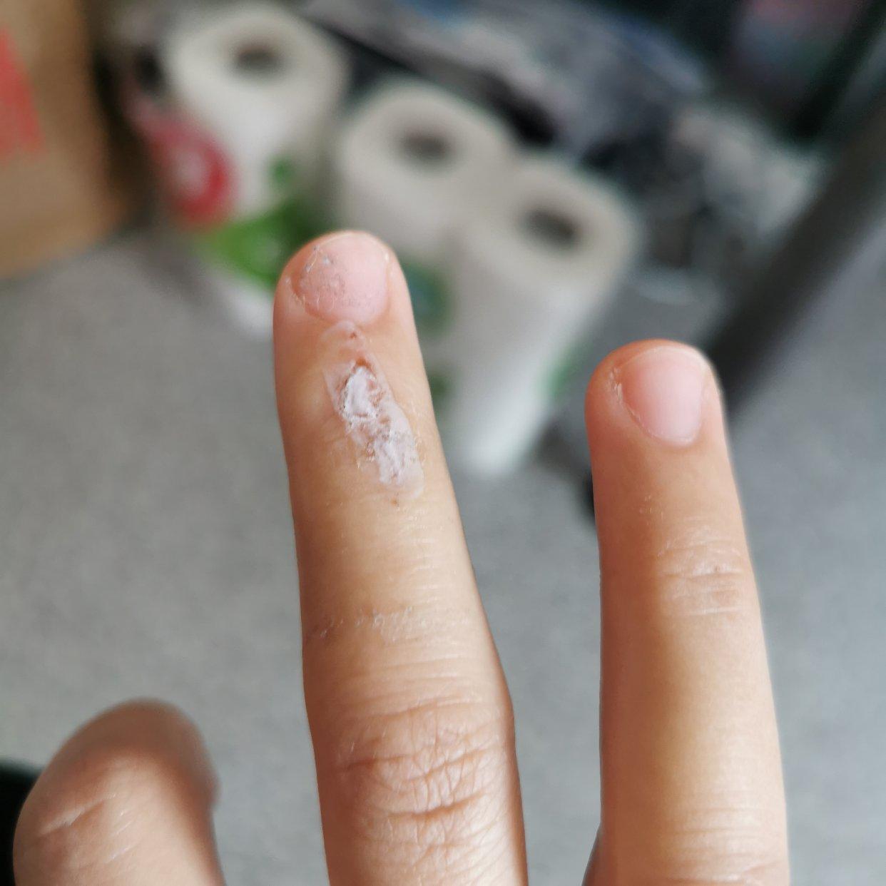 经常磕磕碰碰手容易有小伤口的小伙伴看过来~