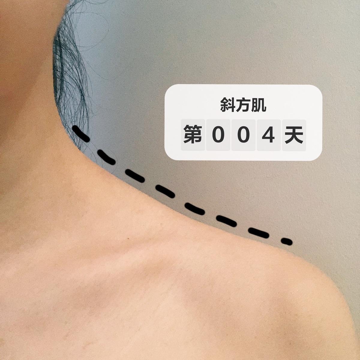 30天斜方肌训练 week 1